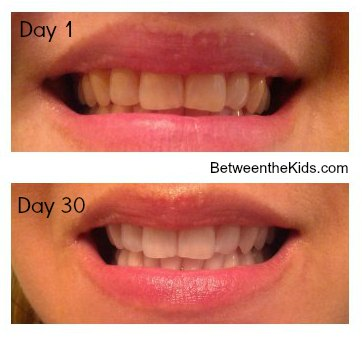 Smile Brilliant Led Teeth Whitening System Review Amp